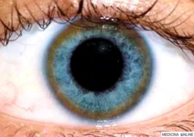 medicina-online-morbo-di-wilson-wilsons-disease-anello-di-kayser-fleischer-kaysere28093fleischer-ring-kf-rings-accumulo-di-rame-cornea-occhio-anello-giallo-verde-bruno