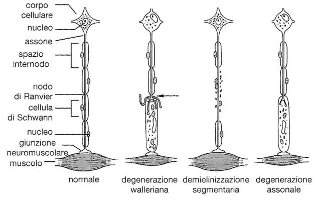 MEDICINA ONLINE Schema dei principali processi patologici che colpiscono i nervi periferici degenerazione walleriana demielinizzazione segmentaria demielinizzazione diffusa degenerazione assonale.jpg