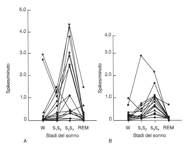 MEDICINA ONLINE ELETTROENCEFALOGRAMMA ALTERAZIONI EEG INTERCRITICHE EPILESSIA Modificazioni della frequenza di scarica in funzione della veglia e degli stadi del sonno.jpg