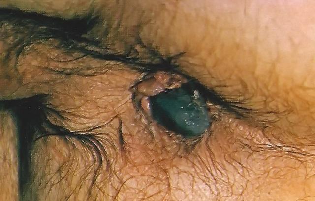 MEDICINA ONLINE EMORROIDI ICHEMICHE NECROTICHE TERAPIA 1.jpg