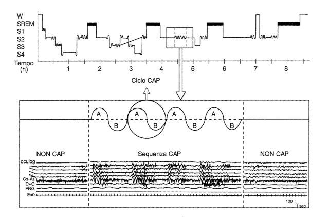 MEDICINA ONLINE SONNO Nel sonno fisiologico la comparsa delle sequenze CAP è correlata ad eventi dinamici quali i cambi di stadio, l'addormentamento, il risveglio, i movimenti corporei.jpg