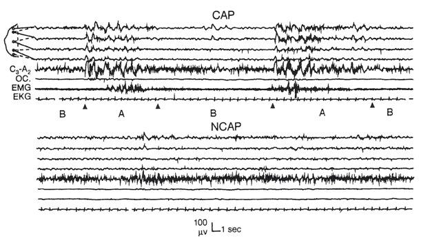 MEDICINA ONLINE SONNO tracciato alternante ciclico cyclic alternating pattern o CAP NCAP